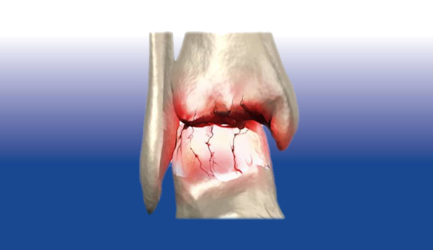 Artrosi caviglia - Sempreinpiedi
