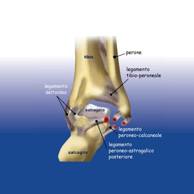 Distorsione caviglia e instabilità artcolari - Sempreinpiedi