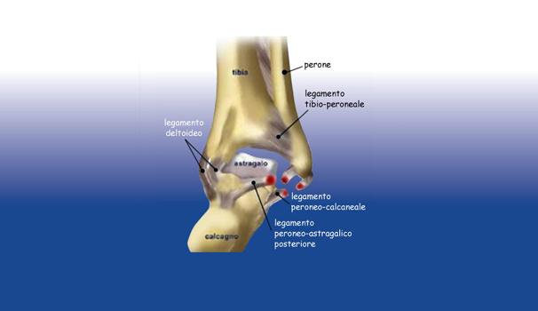 Distorsione caviglia instabilità articolari - Sempreinpiedi