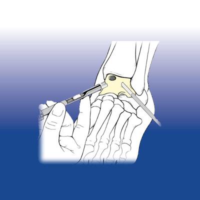 La rigenerazione cartilaginea - Sempreinpiedi