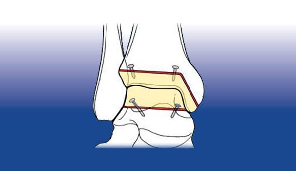 Protesi biologiche - Sempreinpiedi