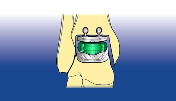 Protesi ortopediche - Sempreinpiedi